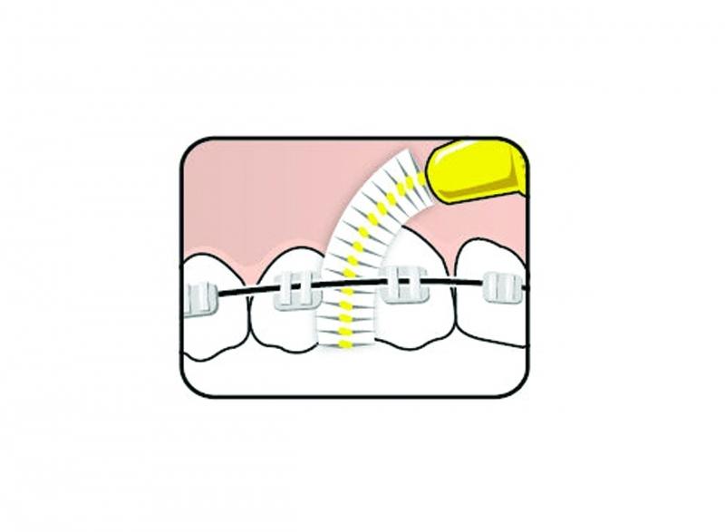 Fogszabályozás - Fogszabályozót viselők szájápolása és a készülék tisztítása - Interdentális kefe használata