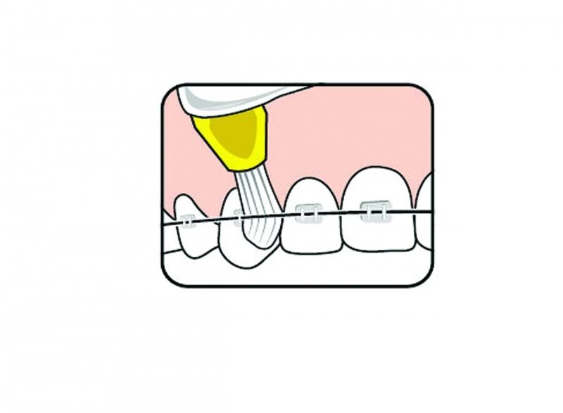 Fogszabályozás - Fogszabályozót viselők szájápolása és a készülék tisztítása - Cserélhető fejű fogkefe