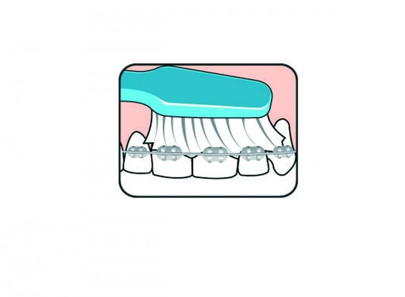 Fogszabályozás - Fogszabályozót viselők szájápolása és a készülék tisztítása - Alapos tisztítás fogkefével