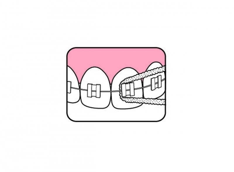 Fogszabályozás - Fogszabályozót viselők szájápolása és a készülék tisztítása - Fogselyem használata