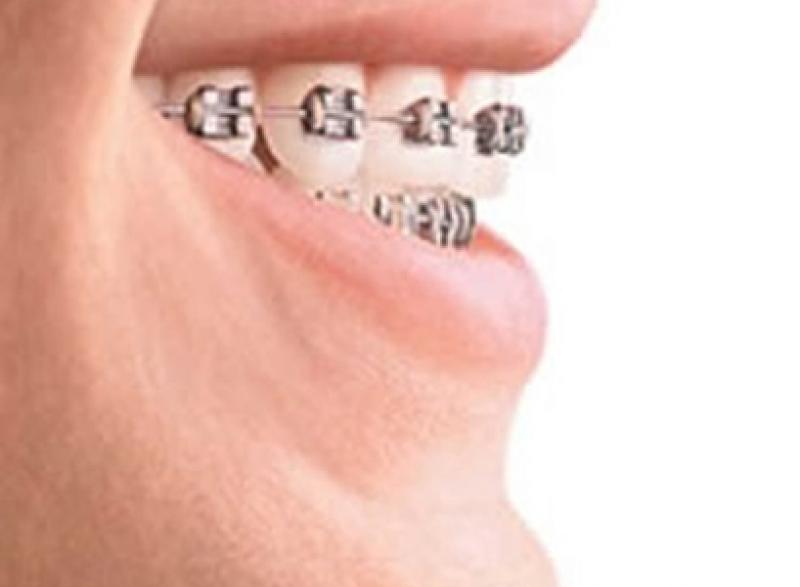 Felnőtt fogszabályozás - Rögzített készülék ragasztás